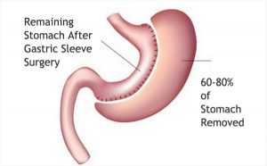Description: gastric sleeve surgery weight loss surgery bariatric surgery